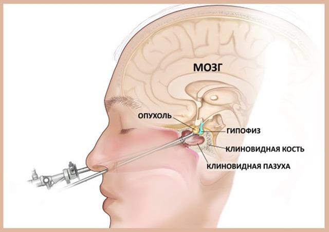 Опухоль гипофиза: симптомы заболевания, тактика лечения, прогноз