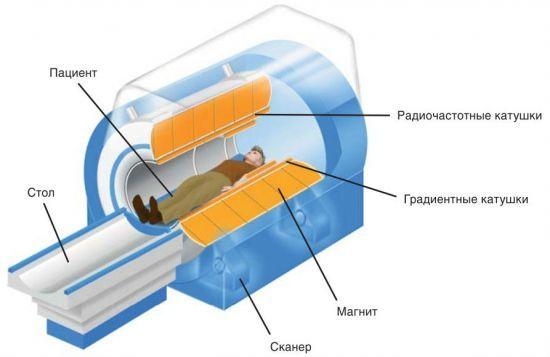 Процедура МРТ: как проводится магнитно-резонанасная томограмма