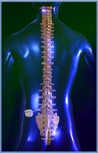 Стимуляция спинного мозга: методы облегчения боли