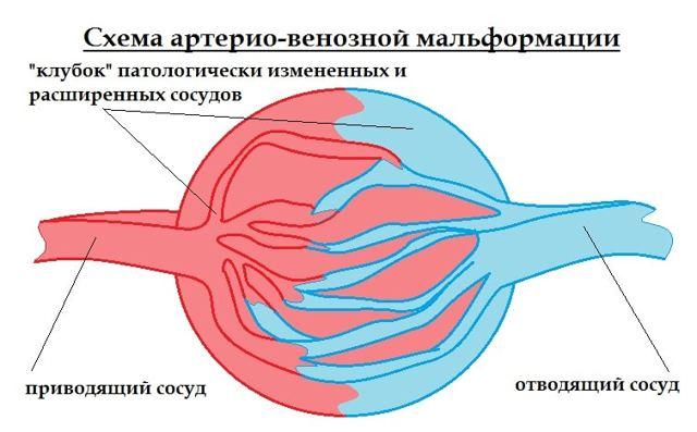 Мальформация сосудов головного мозга человека