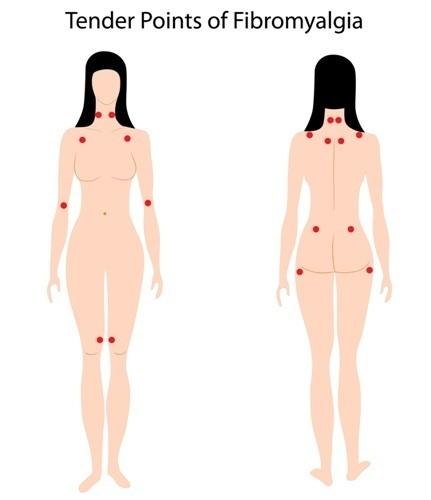 Фибромиалгия: симптомы, причины и лечение заболевания