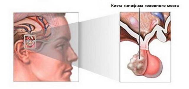Киста головного мозга: причины, симптомы, диагностика и лечение
