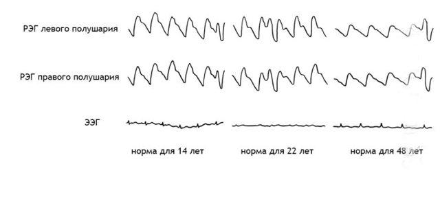 РЭГ сосудов головного мозга: особенности исследования