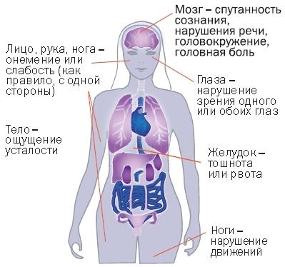 Инсульт головного мозга: геморрагический, ишемический