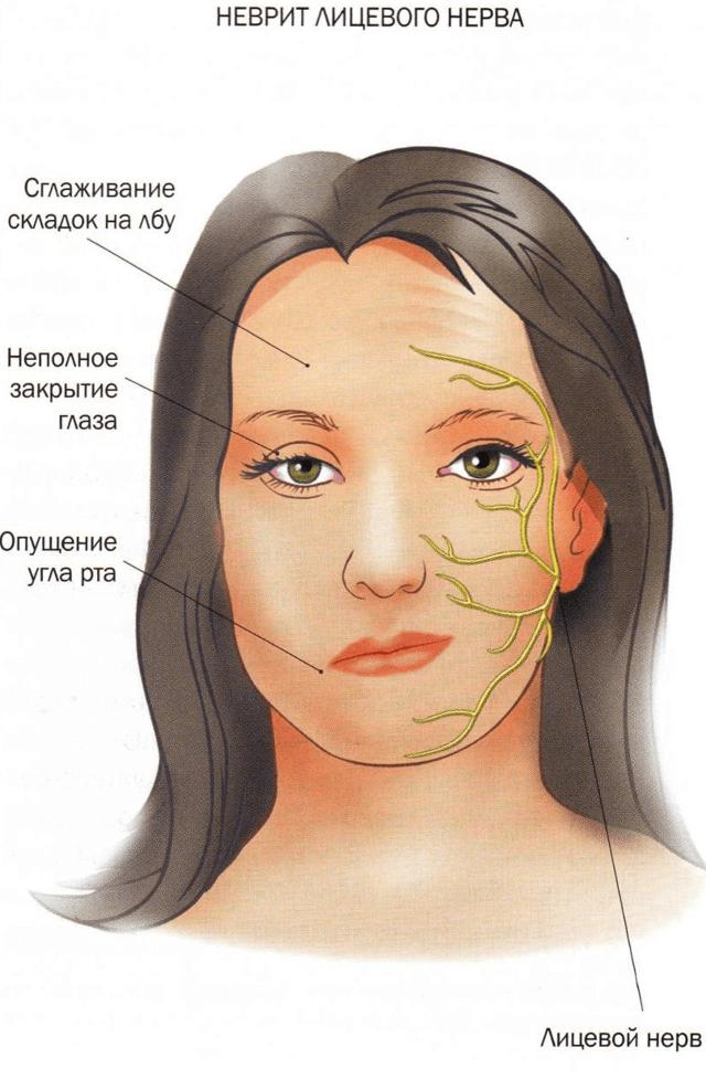 Немеет верхняя губа: причины, симптомы, избавление от патологии