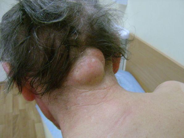 Шишки на голове в волосах: причины появления