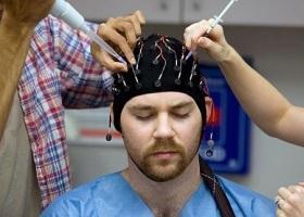 Приступ эпилепсии у человека: причины, симптомы, лечение