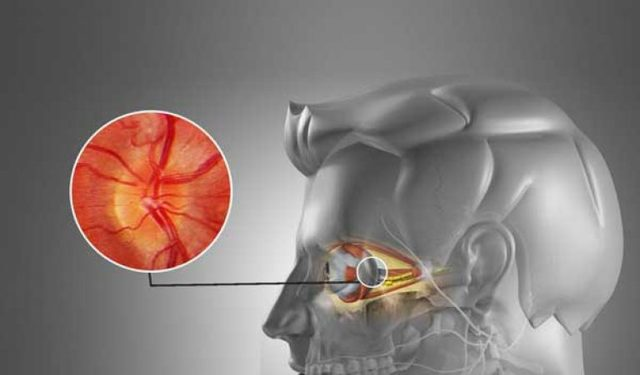 Ретробульбарный неврит: поражение зрительного нерва