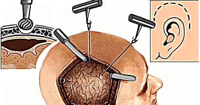 Трепанация черепа: о сложной хирургической операции