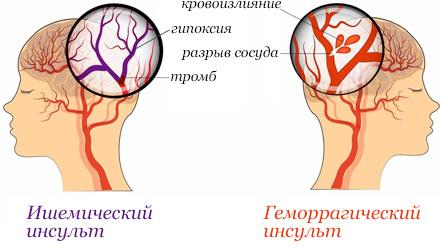 Диета при инсульте: меню и рекомендации врачей