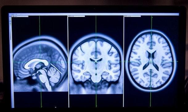 Глиобластома головного мозга: самая страшная опухоль