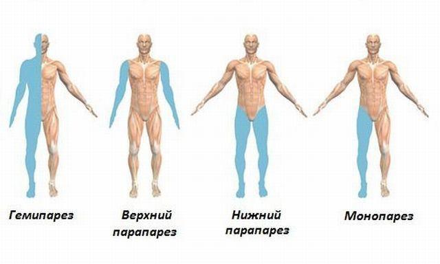 Гемипарез левосторонний: причины паралича тела