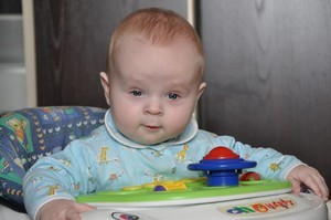 Гидроцефальный синдром у новорождённого ребёнка