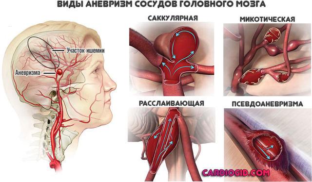 Лакунарный ишемический инсульт головного мозга
