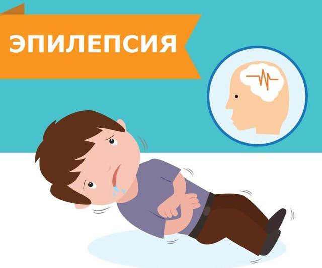 Эпилепсия у детей: причины, проявление и симптомы