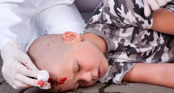 Первая помощь при черепно-мозговой травме пострадавшему