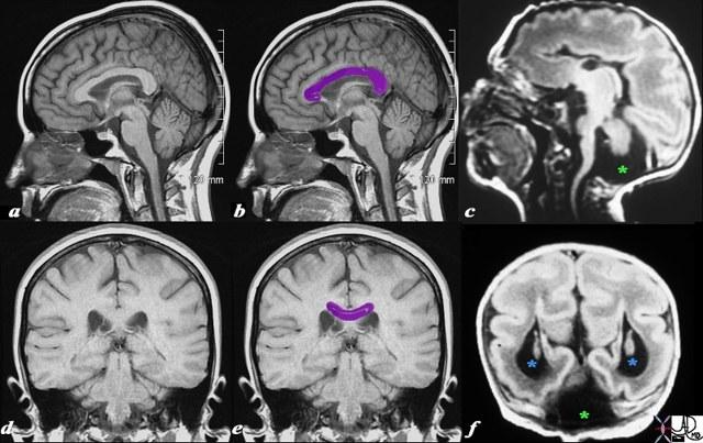 Синдром Денди-Уокера: проблемы с развитием мозга