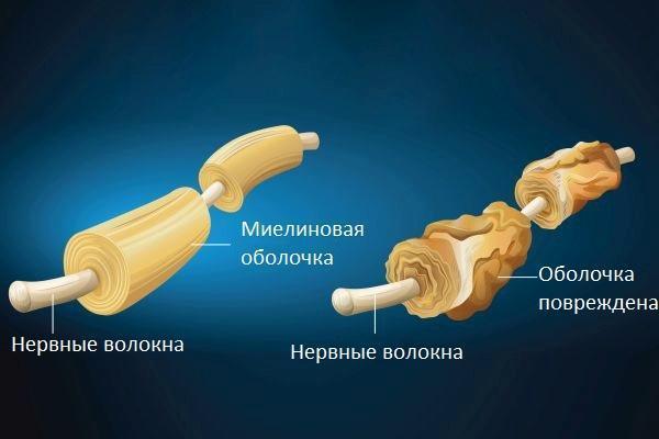 Демиелинизирующее заболевание нервной системы