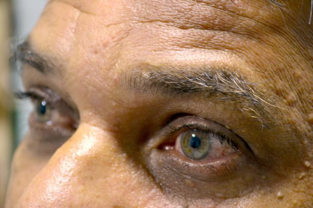 Светобоязнь глаз: поиск причин фотофобии и избавление от них