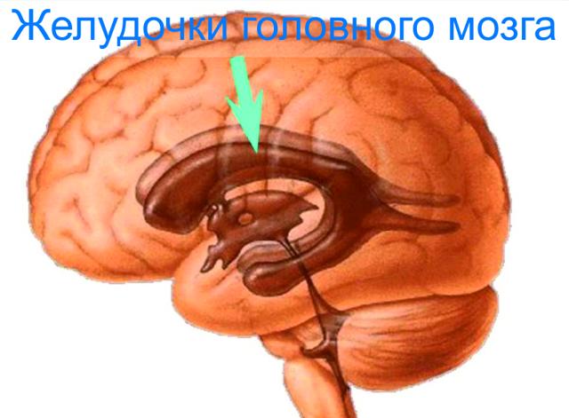 Перивентрикулярная лейкомаляция головного мозга