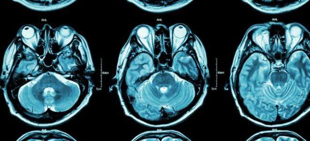 Опухоль головного мозга человека