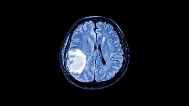 ЭХО ЭГ: принцип проведения эхоэнцефалографии головного мозга