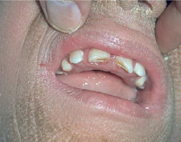cиндром Шегрена: причины, симптомы, лечение патологии