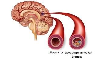 Бляшки в сосудах головного мозга: причины образования