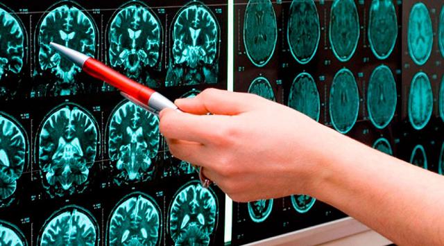 Инсульт: последствия приступа для головного мозга и всего организма