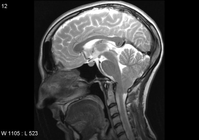 Отек головного мозга: разрастание тканей ввиду накопления жидкости