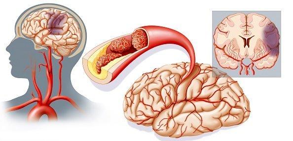 Признаки инсульта у женщины, отличия разных форм заболевания