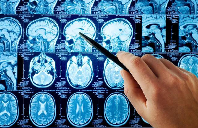 МРТ головного мозга с контрастом: как проводится исследование