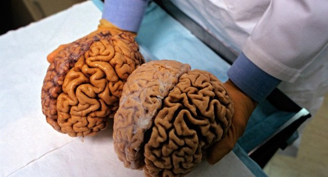 Объем мозга человека и результаты влияния данного фактора