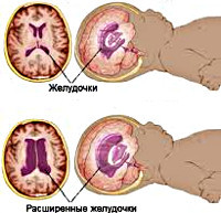 Внутричерепная гипертензия: причины повышения давления