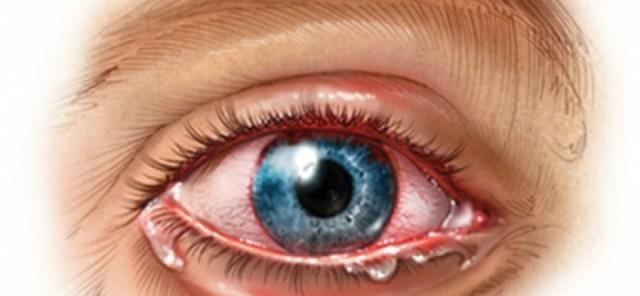 Мушки перед глазами: причины и лечение заболевания