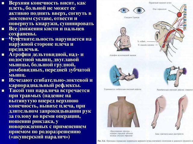 Паралич Дюшена-Эрба: причины и лечение нарушения