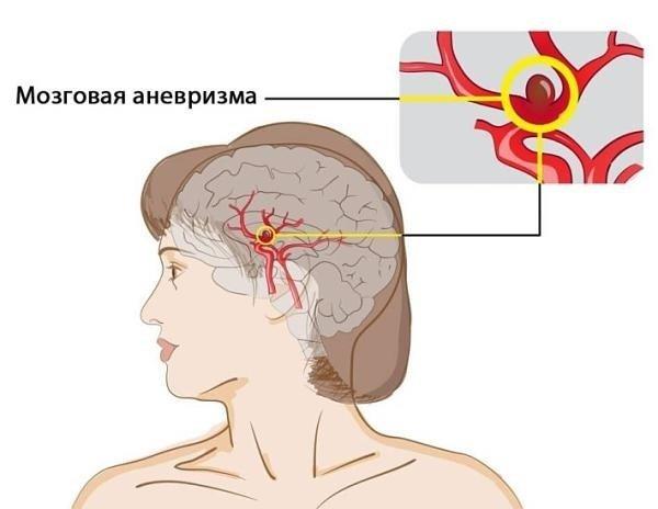 Сосуды головного мозга: заболевания, диагностика, лечение