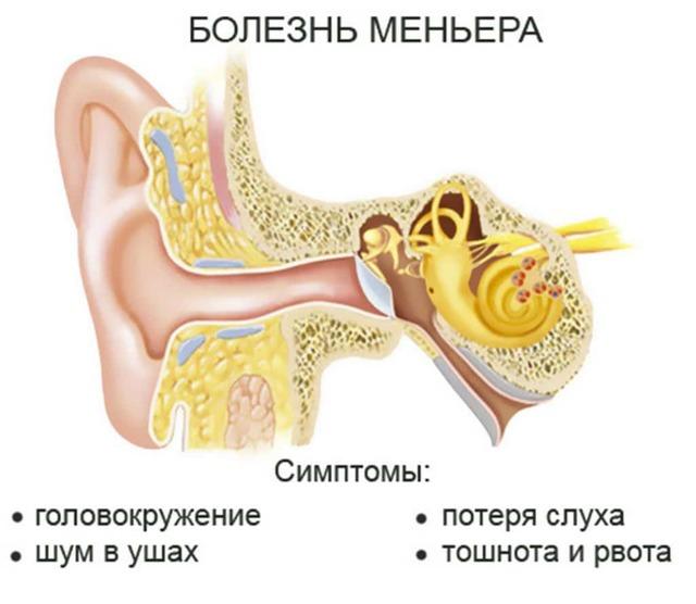 Закладывает уши и кружится голова: возможные заболевания