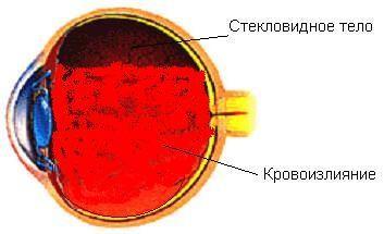 Кровоизлияние в глаз: причины скопления крови