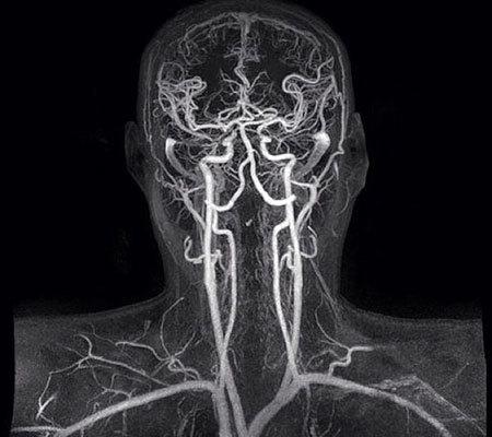 УЗДГ сосудов шеи и головы: неинвазивный метод исследования