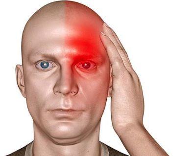 Сильная головная боль: возможные причины недомогания