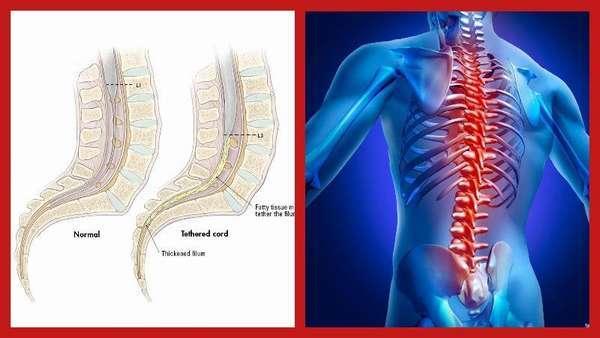 Фиксированный спинной мозг: причины и лечение патологии