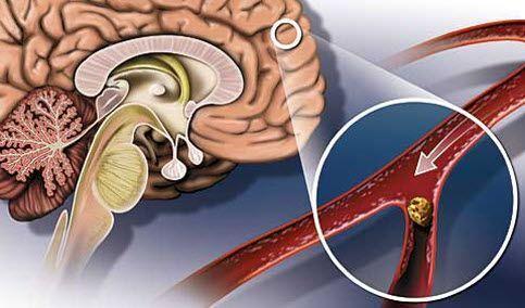 Инсульт с кровоизлиянием: причины, признаки и последствия