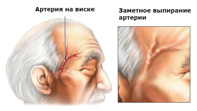 Болит левый висок головы: причины и лечение недомогания