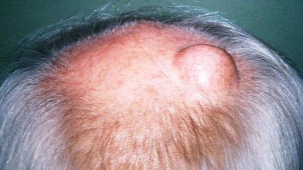 Почему образуются наросты на голове. Наросты на голове в волосах