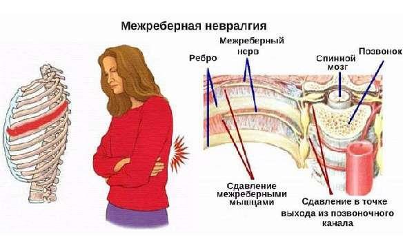 Симптомы невралгии, методы диагностики и лечения заболевания
