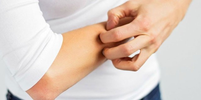 Симптомы после укуса клеща: первые симптомы заболеваний