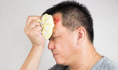 Гематома в голове: следствия повреждения головного мозга