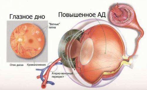 Ангиопатия сетчатки глаза: причины поражения сосудов