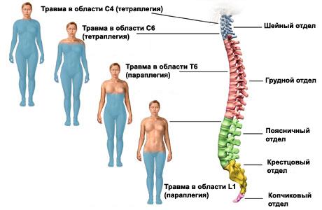 Поражение спинного мозга: виды повреждений органа